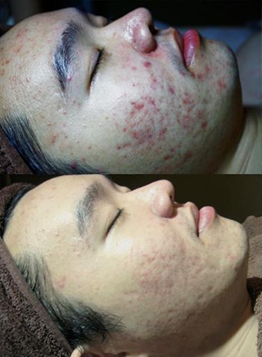 Best Acne Facial
